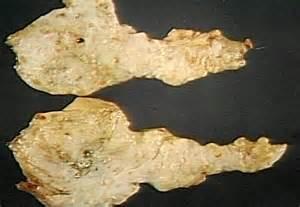 pancreatic cancer stool images