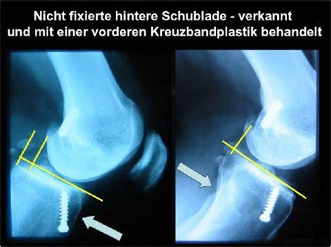 Vordere Schublade by Dr Wipplinger Hintere Kreuzband