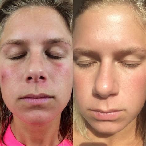 Detox Before And After Skin by This Is Just A 5 Day Difference After Using My Clarisonic