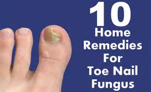 home remedies for toe fungus 10 effective home remedies for toe nail fungus diy