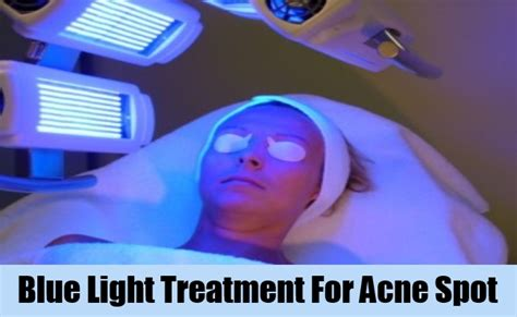 Blue Light Therapy Acne by Sport A Lovely With Acne Spot Treatment Best Acne