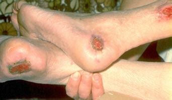 what are bed sores bedsores pressure ulcers causes pictures treatment