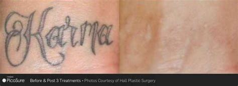 revlite tattoo removal top laser removal carolina picosure