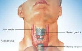 Obat Yodium pengobatan alternatif hipertiroid secara tradisional