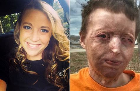 famous people houses burned courtney waldon recovers from severe burns on entire body
