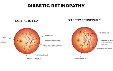 Diabetic Blindness diabetic retinopathy eye health central