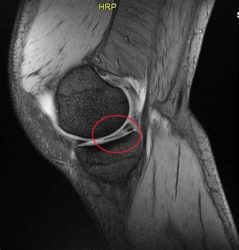 dolore ginocchio sinistro interno lesione al menisco sintomi e cause esami e risonanza