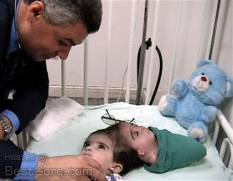 manar maged snopescom manar maged before 14 hour long surgery during which the