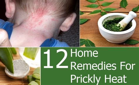 top 12 home remedies for prickly heat top diy health