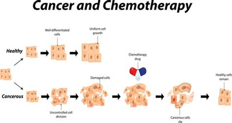 cell wars an history of cancer today books official chemotherapy spreads cancer throughout the