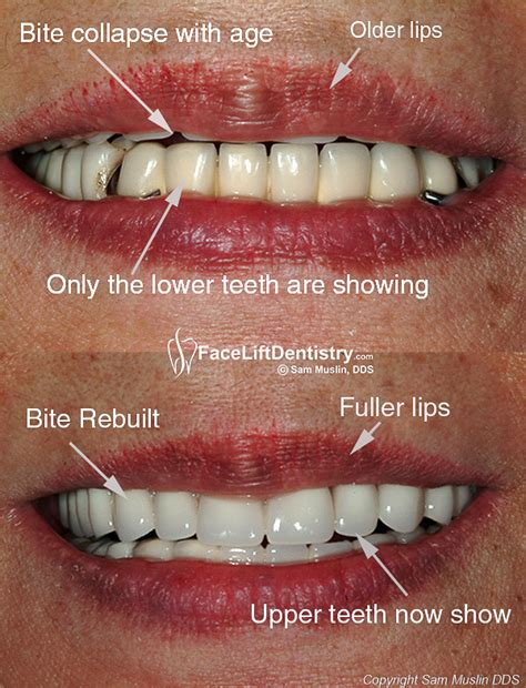 Smile Before Talk cosmetic dentures for a new smile lift dentistry