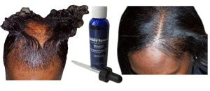 hair growth pills for african americans african american hair loss old page trichologist bobby
