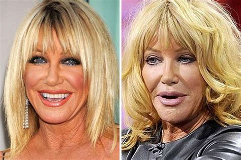 suzanne somers celebrity plastic surgery 24 26 most expensive celebrity plastic surgeries ever