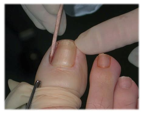 Nail Bed Pain Ingrown Toenails Toronto Foot Clinic Foot Specialist