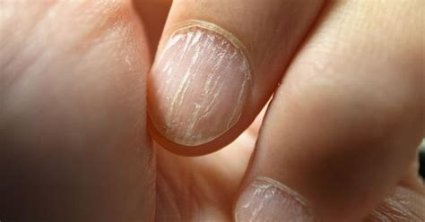 11 things your nails are trying to tell you about your health 8 things your nails are trying to tell you about your