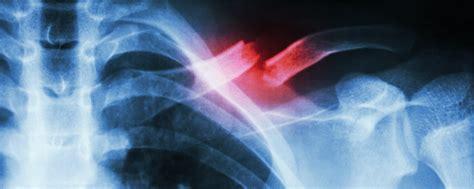 Berapa Obat Ciprofloxacin setelah patah tulang selangka berapa lama bisa sembuh
