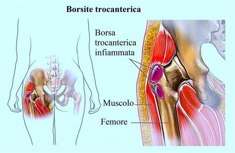 dolore interno coscia inguine dolore all anca durante la corsa e a riposo a letto
