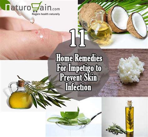 11 best home remedies for impetigo to prevent skin infection