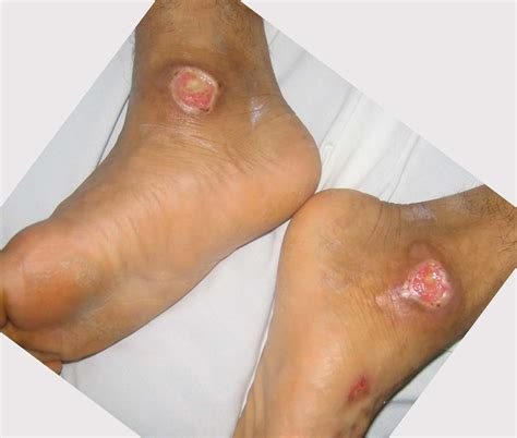 bed sores symptoms bed sores pics pictures photos