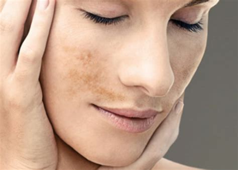 imagenes de manchas oscuras en la cara elimina las manchas del rostro con mascarillas naturales