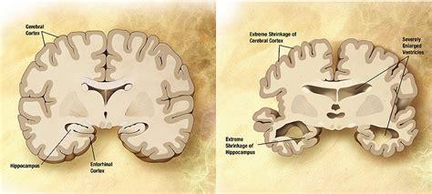 test alzheimer test for alzheimer s disease the niche
