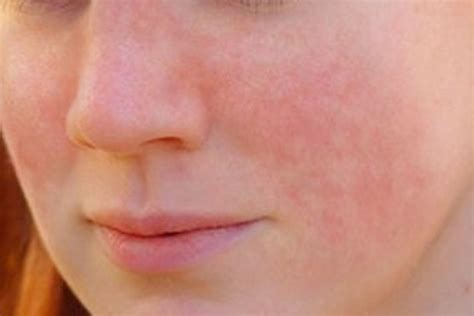 rashes lupus symptoms in women types and causes for lupus rash