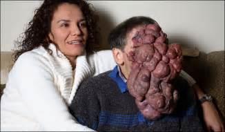 Firebert neurofibromatosis facial tumor