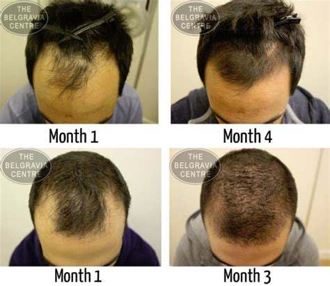 Does Hair Grow Back After Shedding by Taking Propecia Isn T Enough To Save Your Hairline