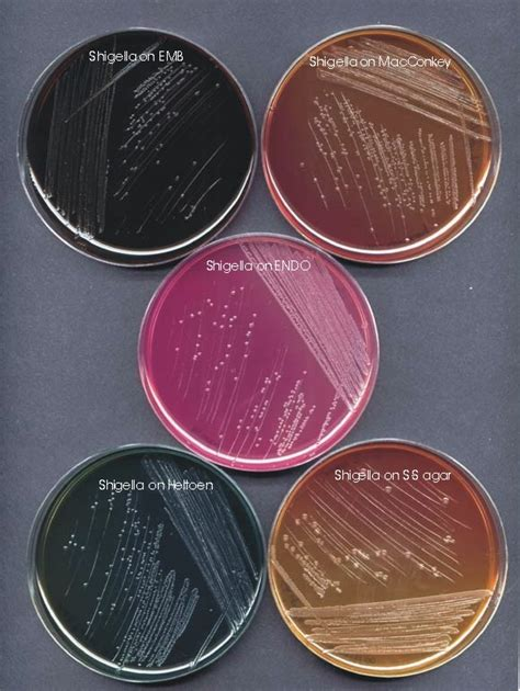 shigella sp germs and worms
