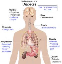 file main symptoms of diabetes png wikimedia commons