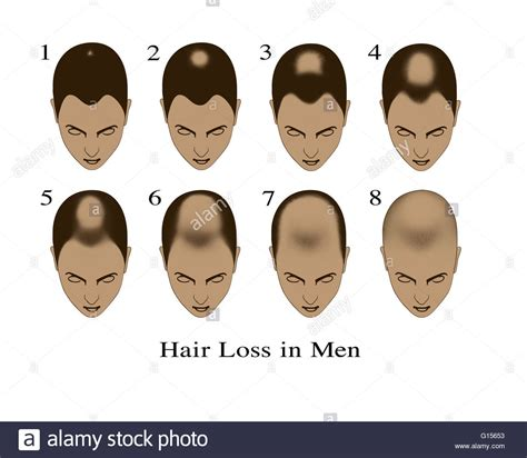 male hair loss changing your shoo among three key way bandage hair shaped pattern baldness illustration showing