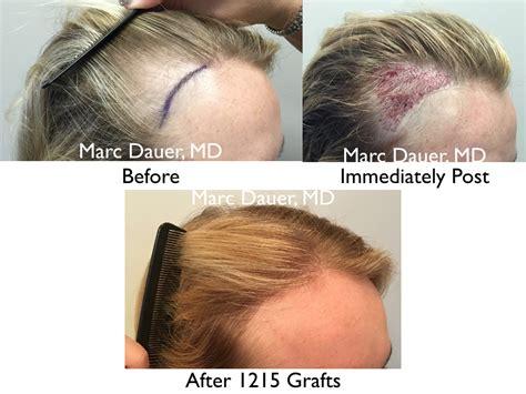 female temporal hair recession female hair transplant results hair transplant los