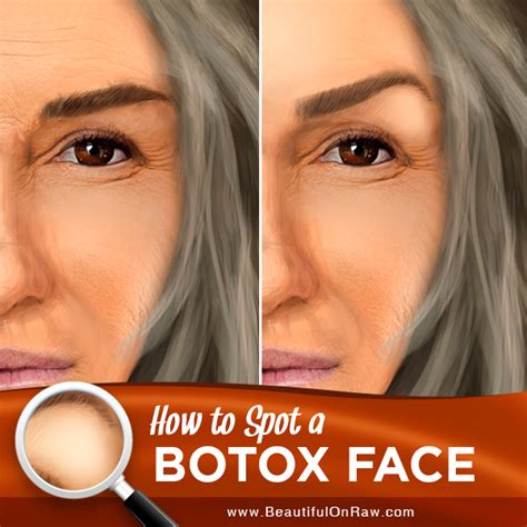 Do They Make Botox For Bags by Botox Signs And Consequences Beautiful On