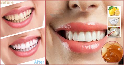 best home remedy for teeth whitening treatment in 3 minutes