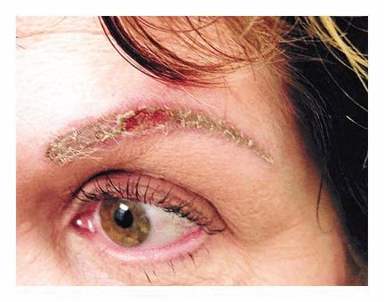 Eyeliner Tattoo Allergic Reaction | image gallery eyeliner allergy