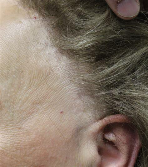 frontal fibrosing alopecia treatment treating frontal fibrosing alopecia ffa are retinoids