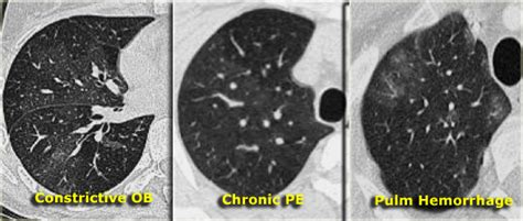 quot mosaic quot pattern on chest ct scans of cteph ph patients the radiology assistant lung hrct basic interpretation