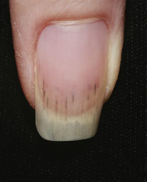 Dark Line On Fingernail by Splinter Hemorrhage