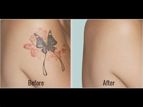 amazing natural tattoo removal before and after results