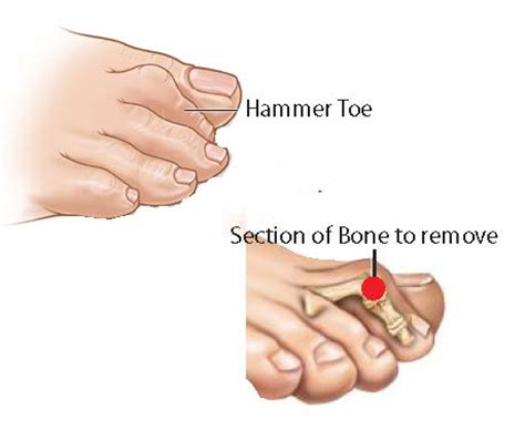 how to fix hammer toes at home 28 images foot health