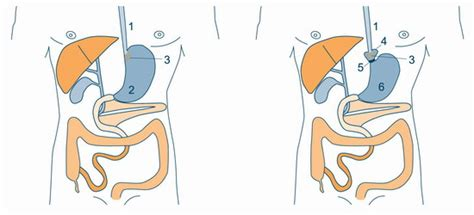 Precisely How The Band Surgery Facilitates Weight Loss by Gastric Banding