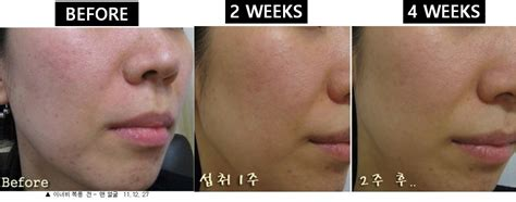 Even Banks Gets Pimples by Buy Ending Soon Bestselling Scientifically Proven