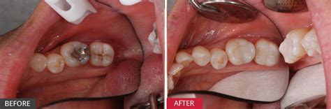 case study replacing  amalgam fillings  catch early