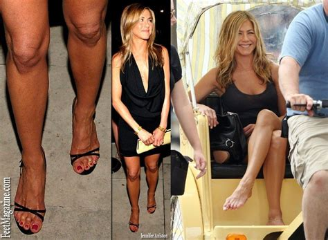 celebrity dry feet celebrities who have ugly feet