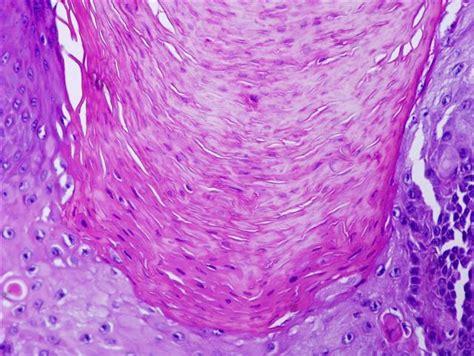 Verruca Plana Pathology Outlines by Verruca Plantaris Pathology Outlines