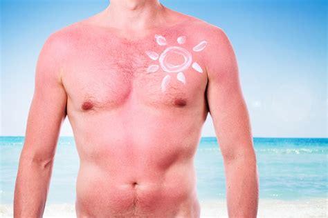 lade e acne lade per dermatologia lade per macchie acne come