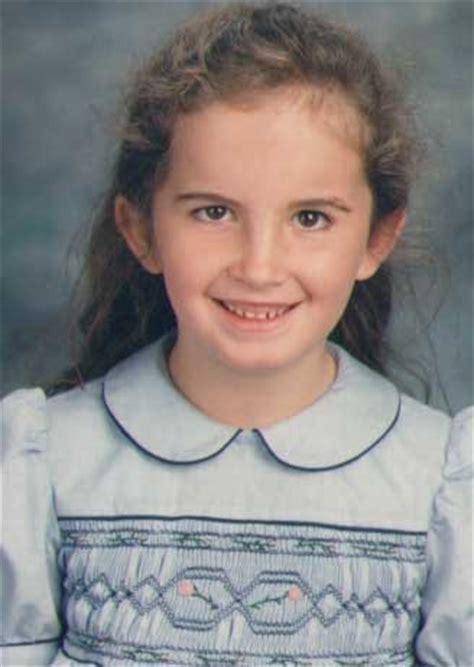 child mild mild strabismus as a child other