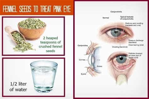 30 home remedies for pink eye relief in adults
