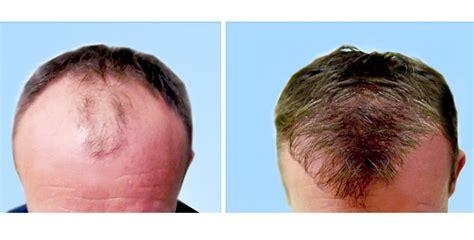 ossigenoterapia viso quante sedute io2 prevenzione della caduta dei capelli con ossigeno