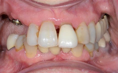implant supported dentures gallery columbus ga dentures